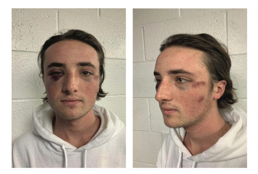 Miami student Ryan McKiernan sported facial injuries in these photos taken the day after the October 3, 2020 brawl.